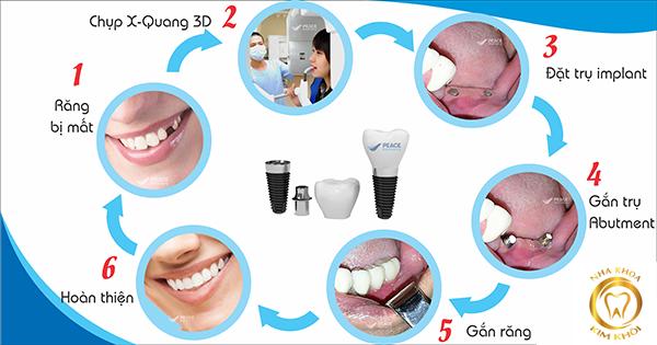 Các thông tin cần biết về phương pháp cấy ghép Implant